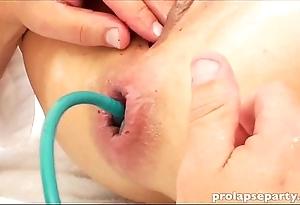 Anal prolapsing winning gynecologist